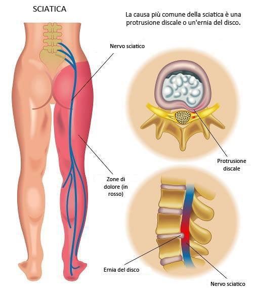 prevenzione della sciatica