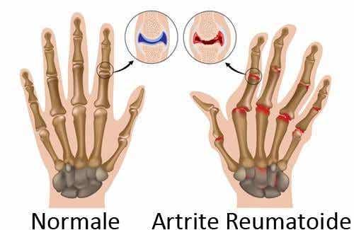 Artrite reumatoide: come tenerne sotto controllo i sintomi