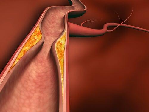 l'accidente cerebrovascolare è causato dall'ostruzione o dalla rottura di un'arteria nel cervello