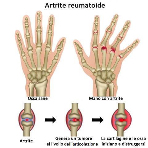 non c'è una cura per l'artrite reumatoide