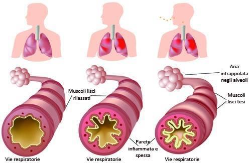 Cosa fare in caso di asma cronica e allergie?