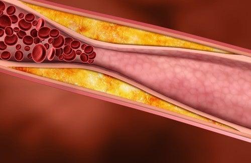 il potere del mango riduce il colesterolo