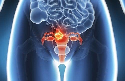 L'endometriosi: tutti i rimedi naturali