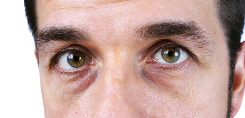 Occhiaie nere