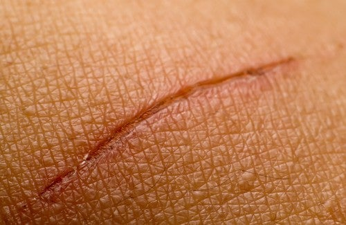 Rimedi per cicatrici
