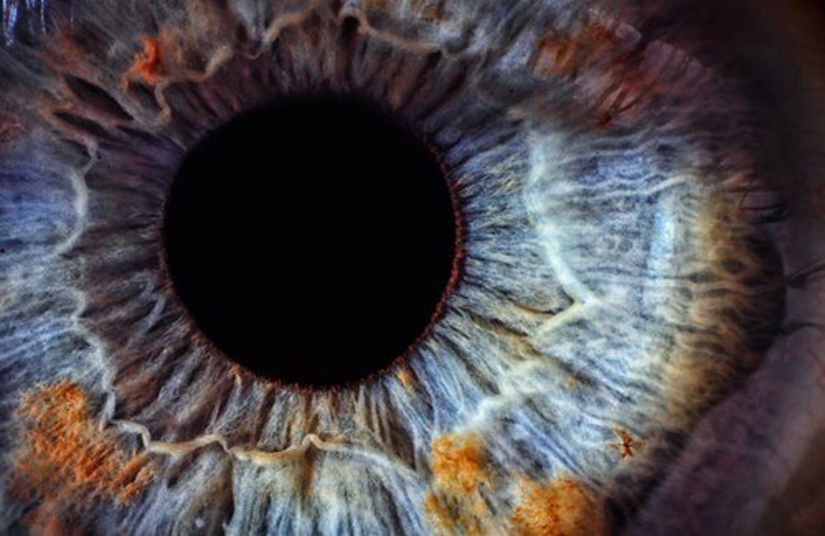 segni neri sul lato degli occhi