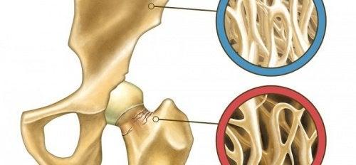 Osteoporosi e prevenzione: i metodi naturali