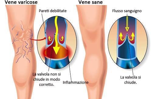 Come prevenire le vene varicose