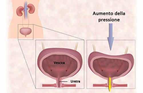 Esercizi per l'incontinenza urinaria della donna