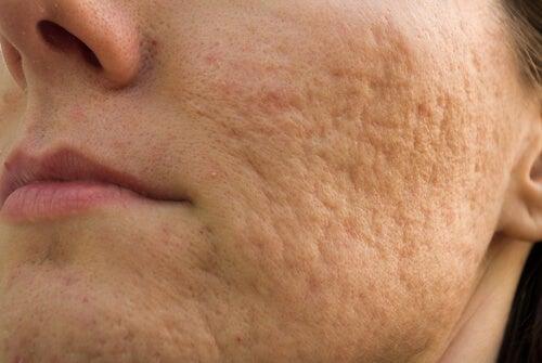 Posti rosa sul trattamento di faccia di una fotografia