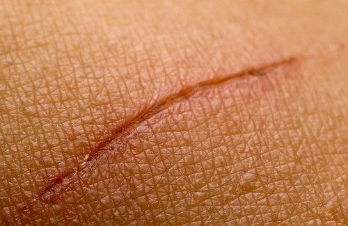 Attenuare le cicatrici o eliminarle: come fare?