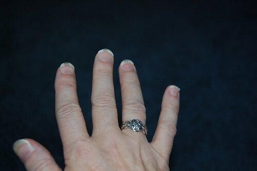 micosi delle unghie della mano