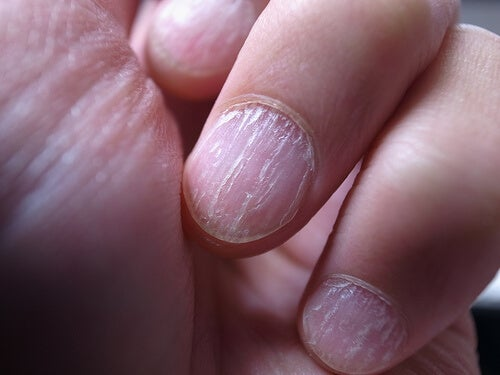 Bystry e trattamento efficace di un fungo su unghie