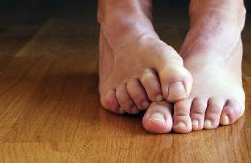 Trattamento di un fungo di forum di dita del piede
