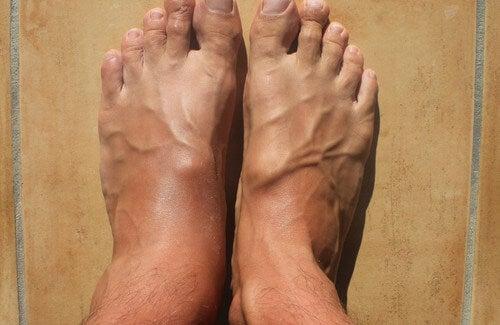 Come ridurre il gonfiore alle caviglie?
