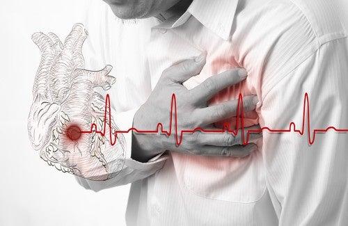 durata sintomi infarto