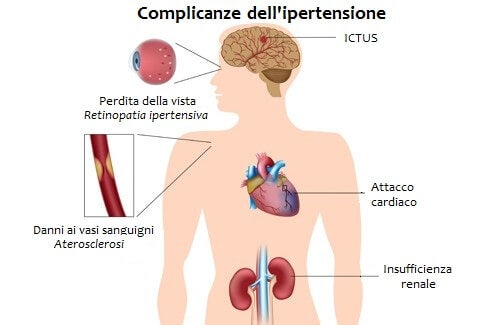 Советы неумывакина от гипертонии - Fibrillazione atriale idiopatica