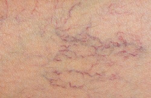 Castagno d'India: un alleato contro le vene varicose