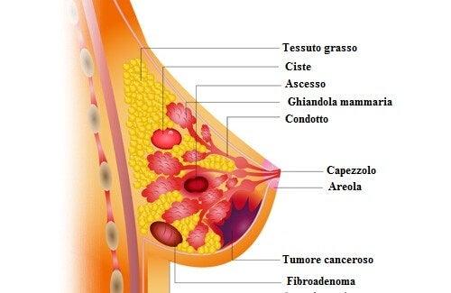 Alimenti che aiutano a prevenire il cancro