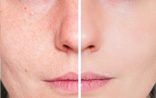 Rimedi naturali per le cicatrici dell'acne