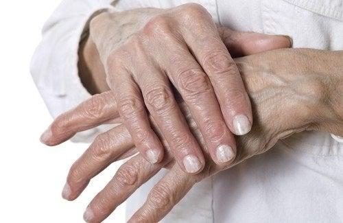 Rimedi naturali per le mani screpolate
