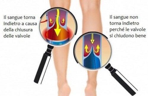 Migliorare la circolazione di gambe e braccia