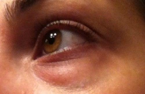 Nascondere le occhiaie e prevenirle in modo naturale