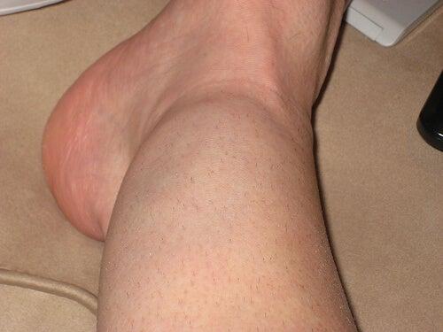 Esempio di gonfiore alle caviglie