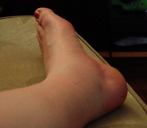 caviglia e piede confio