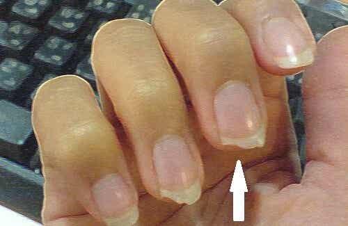 Come evitare che le unghie si spezzino