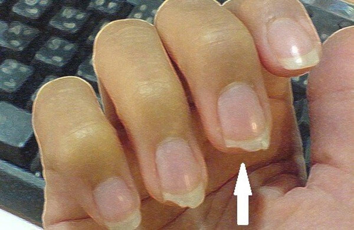 Candeggina Sulla Pelle Rimedi come evitare che le unghie si spezzino - vivere più sani