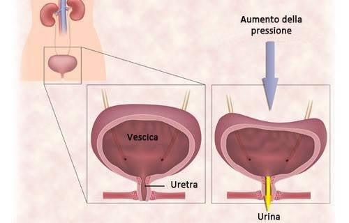 come perdere peso con la terapia delle urine