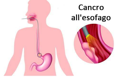 Sintomi delle principali malattie dell'esofago