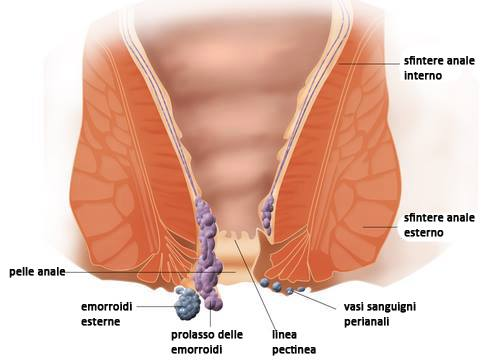 Unguenti rassasyvayushchy gemorroidalny coni - Unguenti di emorroidi in cosmetology