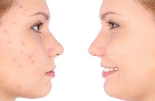 Trattamenti casalinghi per l'acne