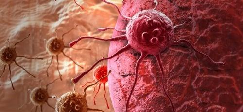 sintomo di perdita di peso cancro alla vescica