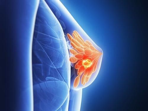 Si potrà predire il cancro al seno
