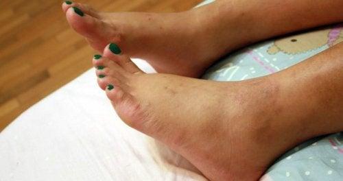 Caviglie gonfie: cause e rimedi