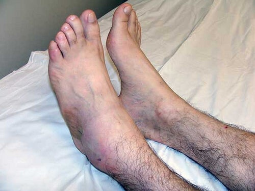 La rimozione di una vena su una gamba quando è possibile andare