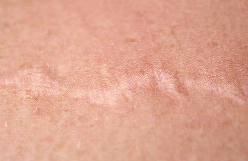 Come trattare le cicatrici con la cipolla