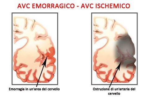 ictus emorragico ischemico