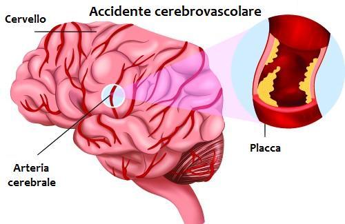 Come riconoscere i sintomi di un ictus