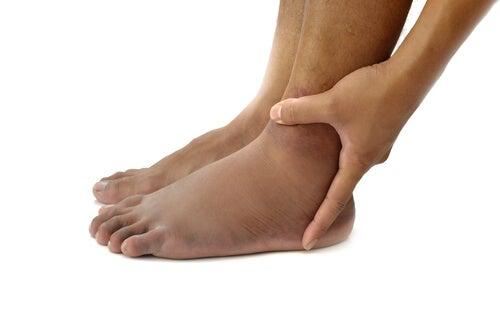 piedi gonfi3