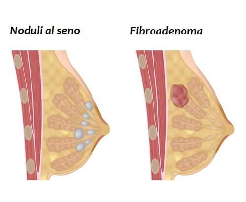 noduli al seno e fibroadenoma
