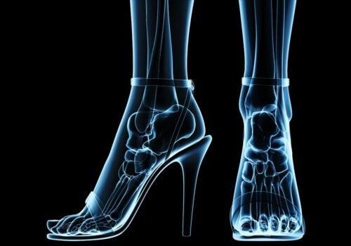 Tacchi - scarpe da evitare
