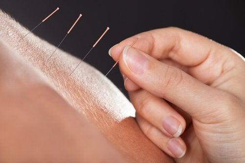 Agopuntura contro l'irsutismo