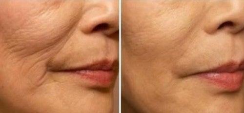esercizi facciali per le rughe della bocca