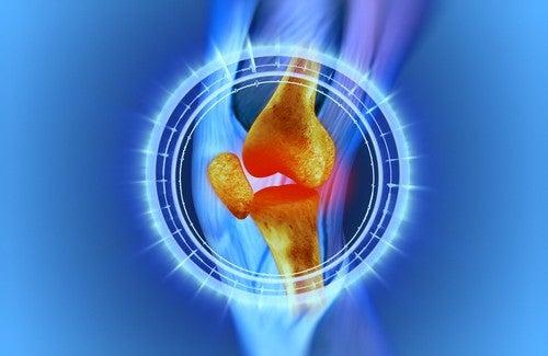 Male alle ginocchia: cause e rimedi naturali