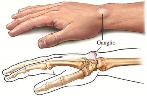 Cisti gangliare