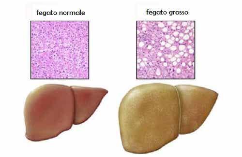 Steatosi o fegato grasso: alimenti da evitare
